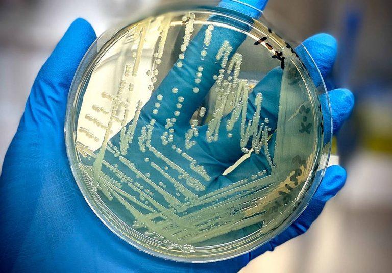 Scientists develop rapid salmonella detection method